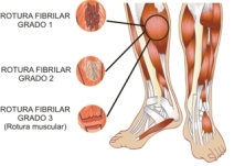 roturas fibrilares grado 1 a 3 centroskinetika.es