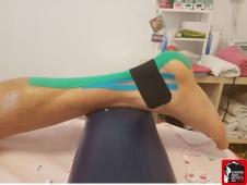kinesio taping lesiones del corredor paula bueno (11) (Copy)