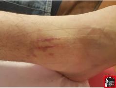 kinesio taping lesiones del corredor paula bueno (14) (Copy)
