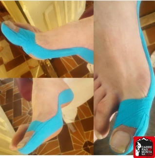 kinesio taping lesiones del corredor paula bueno (6) (Copy)
